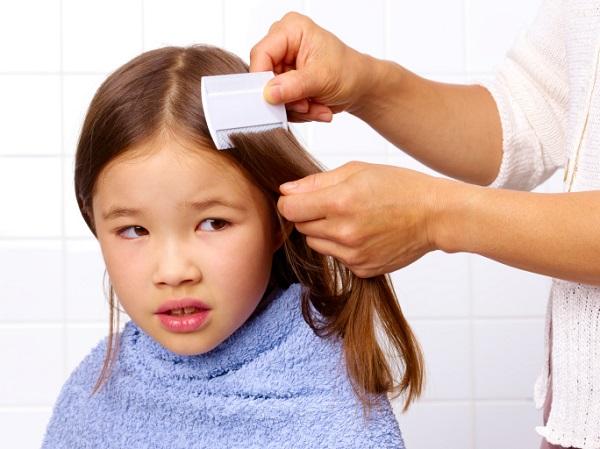 ¡Elimina a los molestos piojos del cabello de tu nena sin maltratarlo!